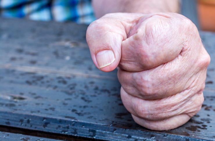Die Hand eines älteren Menschen liegt zur Faust geballt auf einem Tisch.